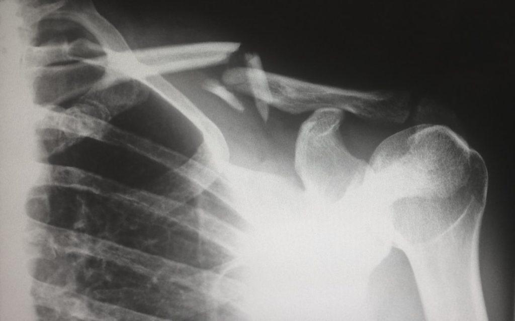 La signature sonore des os, par exemple leur craquement, pourraient bien un jour nous servir à déverrouiller un smartphone. © Unsplash
